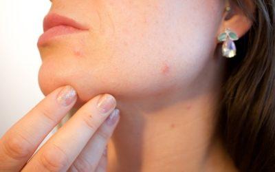 Skóra trądzikowa – 7 porad jak o nią dbać